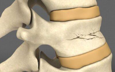 Фиксирующие корсеты Aspen – комфортная иммобилизация при травмах и переломах позвоночника
