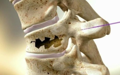 Корсеты Aspen для компрессионных переломов позвоночника при остеопорозе