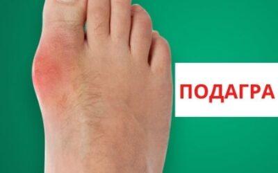 Подагра ног и АЛМАГ Плюс – эффективное лечение в домашних условиях