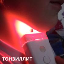 tonsilitis_ML_ru