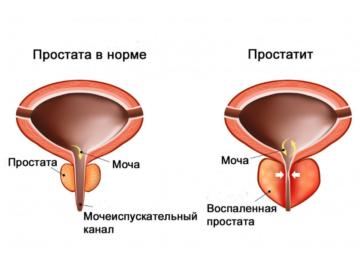 Mav_prostatitis_2